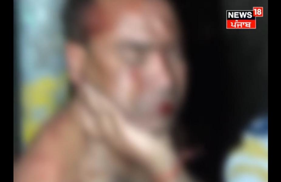 उन्होंने बताया कि लोगों ने उससे रिवाल्वर छीनकर उसकी पिटाई की. जख्मी व्यक्ति को इलाज के लिए सरकारी अस्पताल में भर्ती करवाया गया है. पुलिस मामले की जांच कर रही है. घटना में भीड़ द्वारा गिरीश की इस तरह से पिटाई पर भी सवाल खड़े हो रहे हैं.