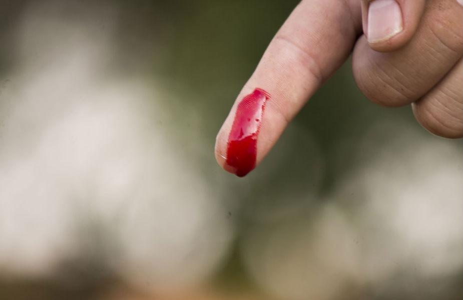 ઘણી વાર જ્યારે આપણને વાગે છે તો તેવામાં લોહી નીકળતું હોય છે. પરંતુ જા આ લોહી 60 સેકેન્ડની અંદર લોડી નીકળવાનું બંધ ન થાય તો તેમાંથી ઘણી સમસ્યાઓ થઈ શકે છે લોહી વહેવું સામાન્ય વાત છે પરંતુ તેનું બંધ થવું ઘણું જરૂરી છે. તેથી આજે જણાવી રહીએ છે એવા ઘરેલૂ ઉપાય જેનાથી 60 સેકેન્ડમાં વહેતુ લોહી રોકી શકો છો.