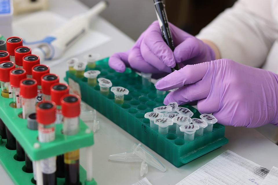 यही नहीं इस एक टेस्ट को करने से कई तरह के कैंसर का पता लगाया जा सकेगा. अब तक जो तकनीक मौजूद है, उसमें हर तरह के कैंसर की जांच के लिए एक अलग टेस्ट से गुजरना होता है.