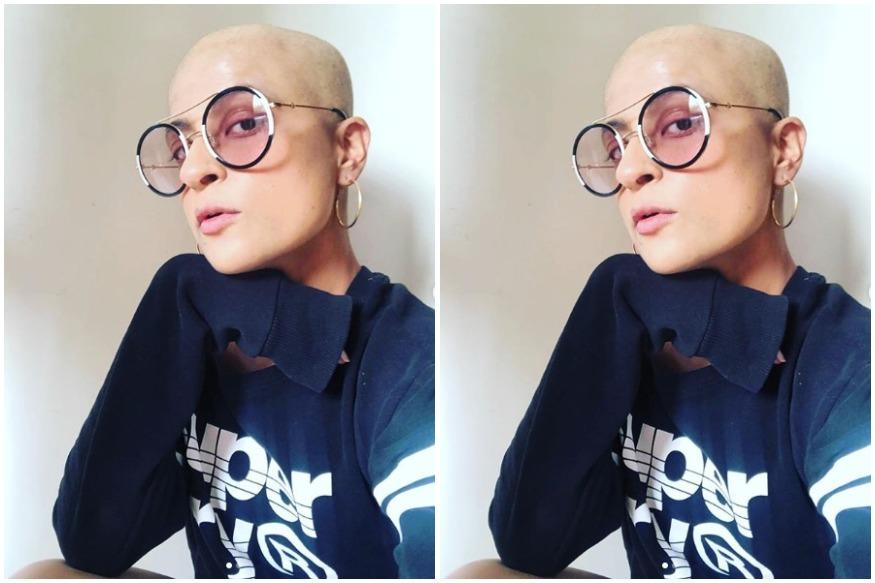 कैंसर से जंग लड़ रही हैं आयुष्मान की पत्नी, बॉल्ड इमेज