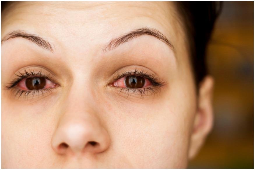 ચહેરા અથવા શરીર પર ધ્યાન ન આપીએ તો ગંભીર બીમારી થઇ શકે છે. તેવી જ રીતે તમારે તમારી આંખોનું ધ્યાન રાખવું એટલું જ જરુરી છે જેમ તમે તમારા શરીરનું ધ્યાન રાખો છો. તો ચાલો જાણીએ કે એવી કઇ બીમારી છે. જેમા કેવા લક્ષણો જોવા મળે છે.