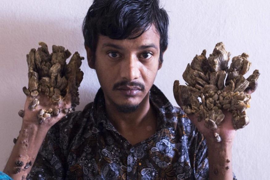 अब्दुल बाजंदर को दुनिया भर में ट्री मैन के तौर पर जाना जाता है. कारण उनके शरीर पर वृक्षों की छाल की तरह दिखने वाली चीजें उग आयी हैं.
