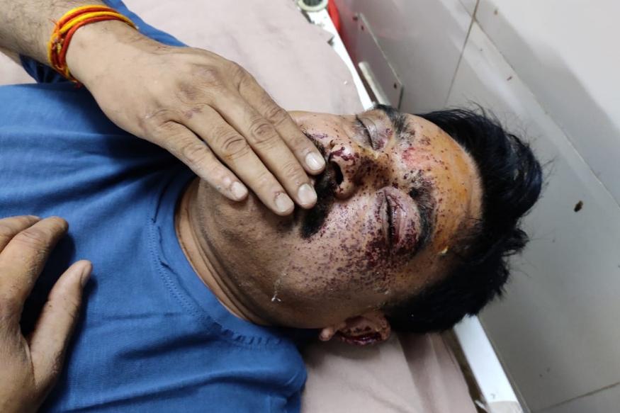 घायल मोंठ प्रभारी निरीक्षक धर्मेद्र सिंह चौहान