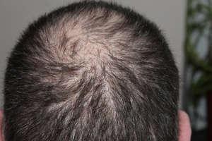 किसी दवा की जरूरत नहीं, इन 8 उपायों से रुकेंगे झड़ते बाल