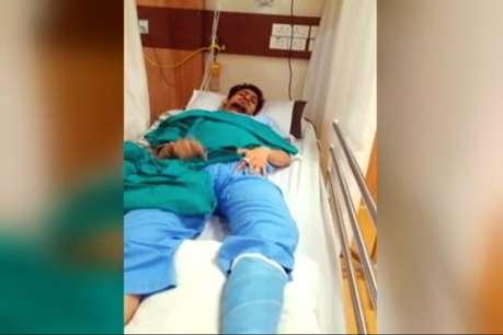 दाएं पैर में था फ्रैक्चर, डॉक्टरों ने बाएं पैर का कर दिया ऑपरेशन!