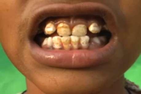 फ्लोराईड युक्त पानी ने गला दीं हड्डियां, बीमारकर दिए दांत-मसूढ़े