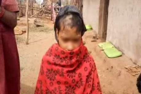 छेड़छाड़ पीड़ित नाबालिग लड़की का आधा सिर मुंडवाया, फिर मुर्गे-शराब की दावत