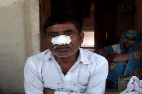 कन्नौज: शराब के लिए भाई की काटी नाक, परिजनों पर किया हमला