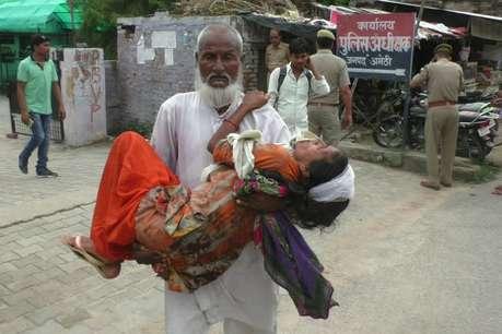 अमेठी: घायल पत्नी को गोद में लेकर एसपी ऑफिस पहुंचा पीड़ित