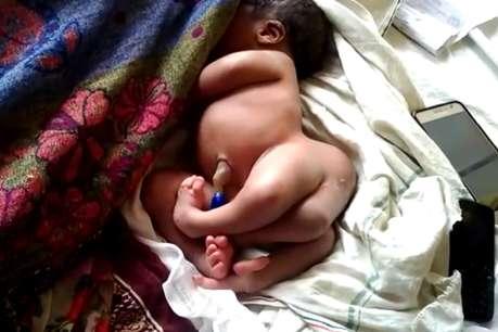गोरखपुर में चार पैर वाले नवजात बच्चे का हुआ जन्म, हैरत में पड़े लोग