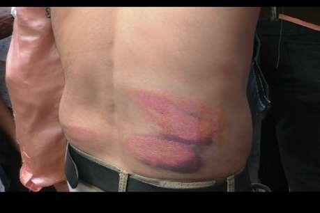 लाउडस्पीकर बंद करने को लेकर हुआ विवाद, पुलिस ने बरसाई लाठियां