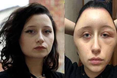 सुंदर बालों के लिए लड़की ने लगाया डाई, चिपटा हो गया चेहरा, दोगुना हो गया सिर