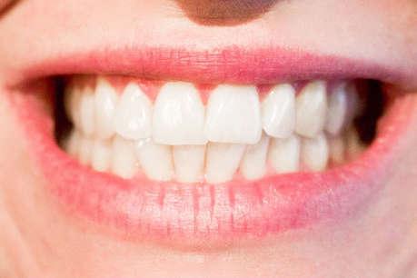 मोती जैसे चमकेंगे दांत अगर अपनाएंगे ये एक घरेलू नुस्खा