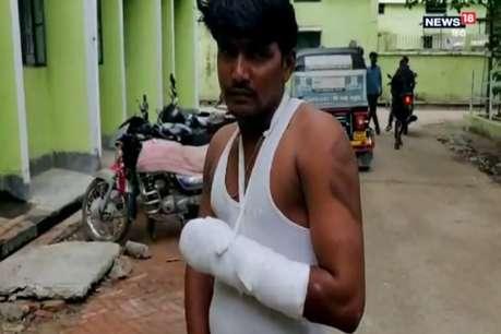 बिहार पुलिस का क्रूर चेहरा, थाने में ड्राइवर को इतना पीटा कि टूट गया हाथ