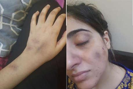 पाकिस्तान के मशहूर अभिनेता की पत्नी का आरोप- मुझे जमीन पर घसीटकर कई बार लात मारी, मैं गर्भवती थी