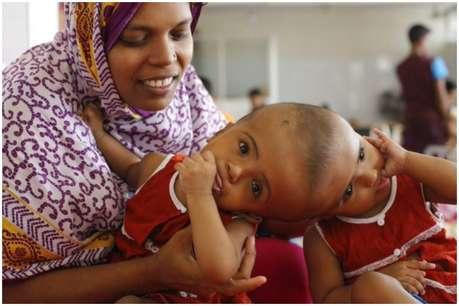 तीन साल से सिर से जुड़ी थी बच्चियां, 30 घंटे के ऑपरेशन के बाद मिली नई जिंदगी