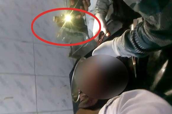 VIDEO: टॉर्च की रोशनी में अस्पताल, चपरासी ने पेशेंट के सिर में लगाये टांके